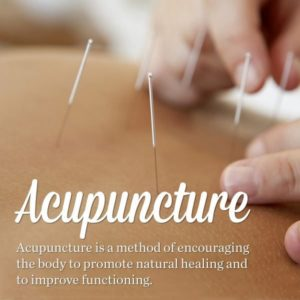 Simple Steps To Help You Better Understand Acupuncture